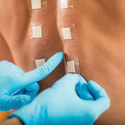 Patch Test Αλλεργιών